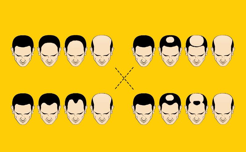 头发的战争
