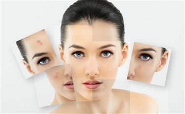 课程预告||激素脸?来!我教你怎么为敏感肌打造产品